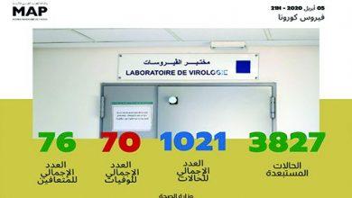 Photo of فيروس كورونا: 1021 حالة مؤكدة بالمغرب وتماثل خمس حالات جديدة للشفاء